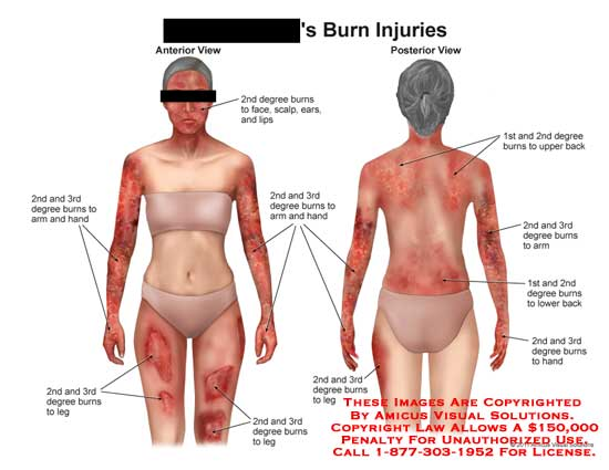 amicus,injury,burns,injuries,1st,2nd,3rd,first,second,third,degree,leg,arm,hand,face,scalp,ears,lips,back,
