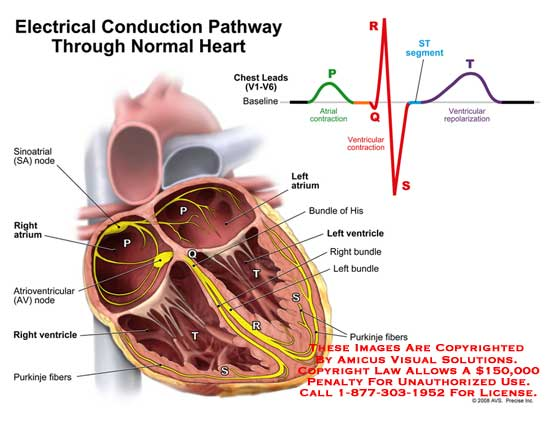 amicus illustration of amicus medical heart electrical conduction rh medicalexhibits com electrical diagram of an hvac system electrical diagram of a pacing circuit