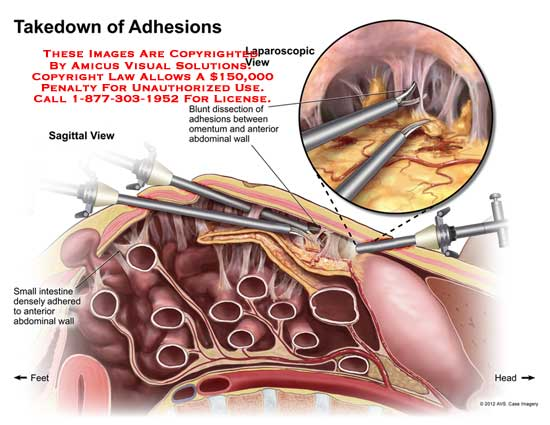 amicus,surgery,abdomen,abdominal,cavity,takedown,adhesions,blunt,dissection,omentum,wall,small,intestine,adhered