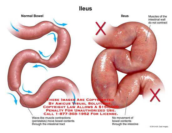 amicus illustration of amicus,bowel,ileus,wave like,muscles Ileus Anatomy ileus
