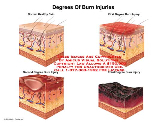 amicus,medical,burn,injuries,injury,degrees,healthy,skin,first,1st,second,2nd,third,3rd