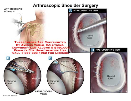 the benefits of arthroscopic shoulder surgery Visit this page to learn the benefits of arthroscopic surgery, and let our orthopedic surgeon handle for your arthroscopic shoulder surgery.