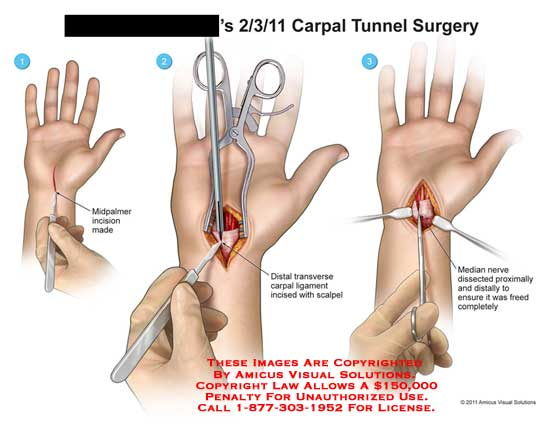 Carpal Tunnel Surgery >> Carpal Tunnel Surgery