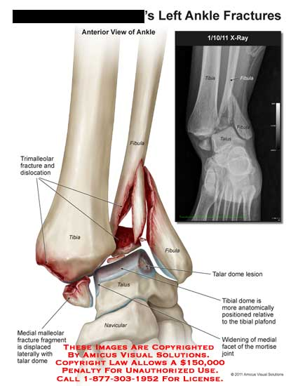amicus,injury,ankle,fractures,trimalleolar,dislocation,fibula,tibia,talus,navicular,malleolar,fragment,displaced,talar,dome,lesion,plafond,facet,mortise,joint