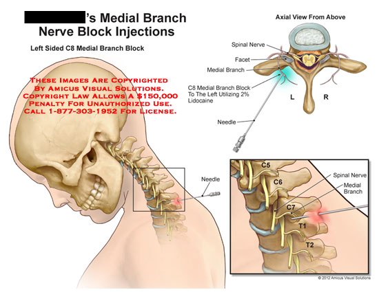 amicus,medical,medial,branch,nerve,block,injections,spinal,facet,block,lidocaine,needle,