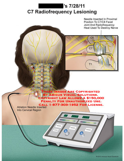 amicus,medical,cervical,spine,nerve,C7,radiofrequency,lesioning,needle,facet,joint,heat,destroy,ablation