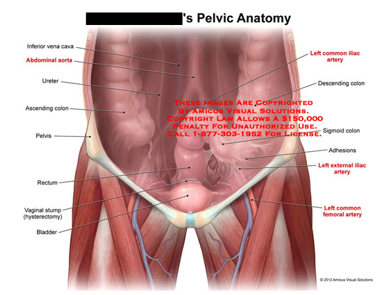 amicus,anatomy,pelvic,inferior,vena,cava,IVC,abdominal,aorta,ureter,ascending,colon,pelvis,rectum,vaginal,stump,hysterectomy,bladder,common,iliac,artery,descending,sigmoid,adhesions,external,femoral