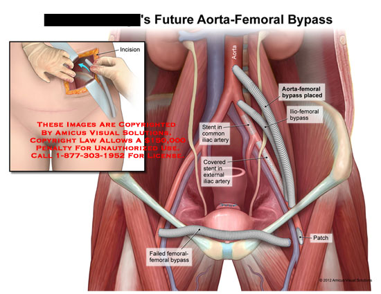 Femoral Bypass Surgery Diagrams - Product Wiring Diagrams •