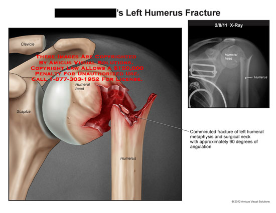 AMICUS Illustration of amicus,injury,humerus,fracture,clavicle ...