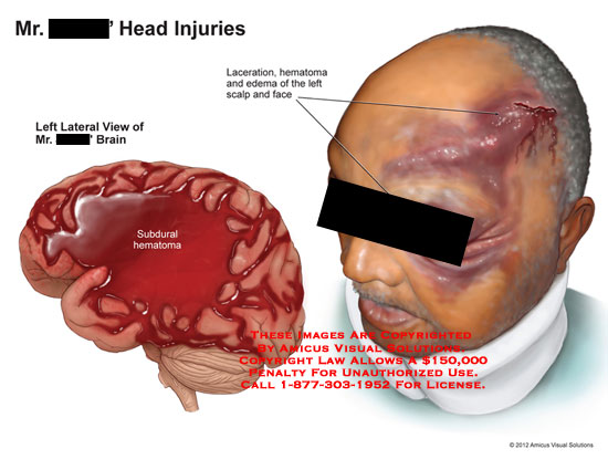amicus,injury,brain,head,injuries,subdural,hematoma,laceration,edema,scalp,face
