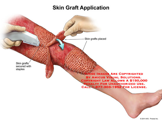 amicus,surgery,skin,grafts,application