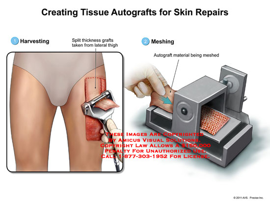 amicus,surgery,tissue,autografts,skin,repairs,harvesting,split,thickness,grafts,thigh,meshing,material
