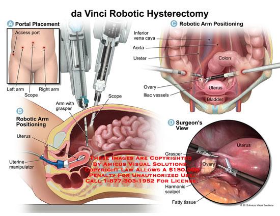 amicus,surgery,da,vinci,davinci,robotic,hysterectomy,portal,access,arm,scope,uterine,manipulator,grasper,scope,inferior,vena,cava,IVC,aorta,ureter,ovary,iliac,vessels,colon,uterus,bladder,harmonic,scalpel,fatty,tissue