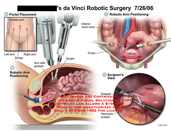 amicus,surgery,da,vinci,davinci,robotic,portal,access,arm,scope,grasper,positioning,inferior,vena,cava,IVC,uterus,ovary,harmonic,scalpel