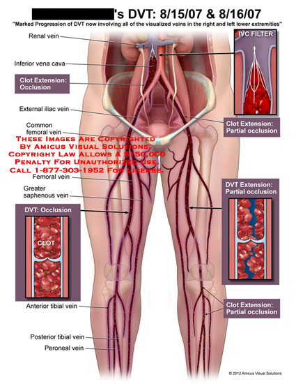 amicus,injury,DVT,deep,veins,thrombosis,lower,extremities,renal,vena,cava,clot,extension,occlusion,iliac,femoral,saphenous,tibial,peroneal,IVC,filter,