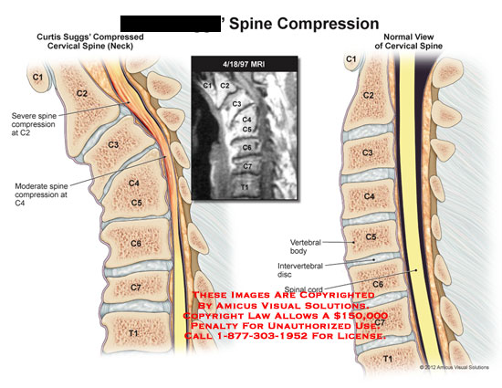 amiucs,injury,spine,compression,compresed,cervical,neck,MRI,vertebral,body,intervertebral,disc,spinal,cord