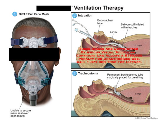 amicus,medical,ventilation,therapy,BiPAP,full,face,mask,mouth,intubation,endotracheal,tube,larynx,balloon,cuff,trachea,lungs,tracheostomy,tube,breathing