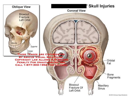 amicus,injury,skull,blowout,fracture,orbital,maxillary,mandible,zygoma,floor,sinus,bone,fragments,fat