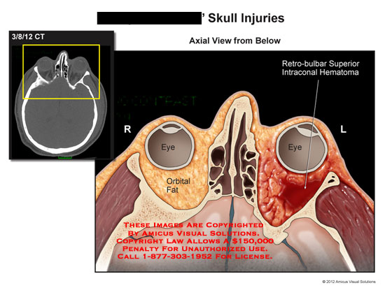 amicus,injury,skull,injuries,CT,eye,orbital,fat,retro-bulbar,intraconal,hematoma