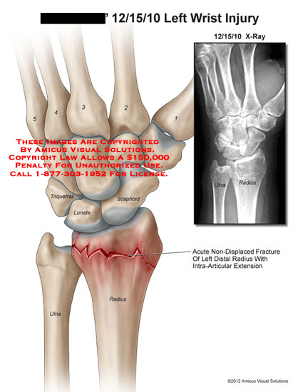 amicus,injury,wrist,triquetral,lunate,scaphoid,ulna,radius,non-displaced,fracture,intra-articular,extension,x-ray