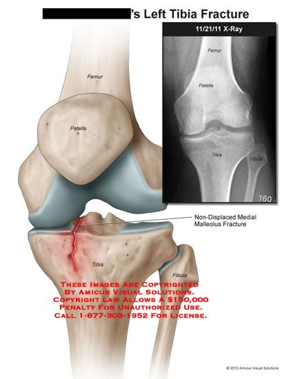 amicus,injury,knee,tibia,fracture,femur,patella,fibula,non-displaced,malleolus,x-ray