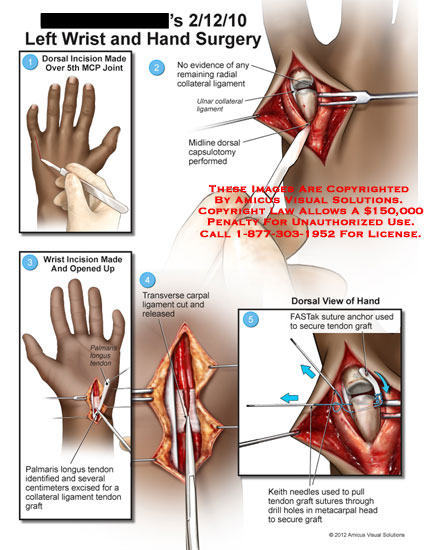 amicus,surgery,wrist,hand,MCP,metacarpophalangeal,joint,radial,collateral,ligament,ulnar,capsulotomy,palmaris,longus,tendon,graft,transverse,carpal,FASTak,suture,anchor,Keith,needles,drill,metacarpal,head