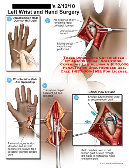 amicus,surgery,wrist,hand,MCP,metacarpophalangeal,joint,radial,collateral,ligament,ulnar,capsulotomy,palmaris,longus,tendon,graft,transverse,carpal,FASTak,suture,anchor,Keith,needles,drill,metacarpal,head