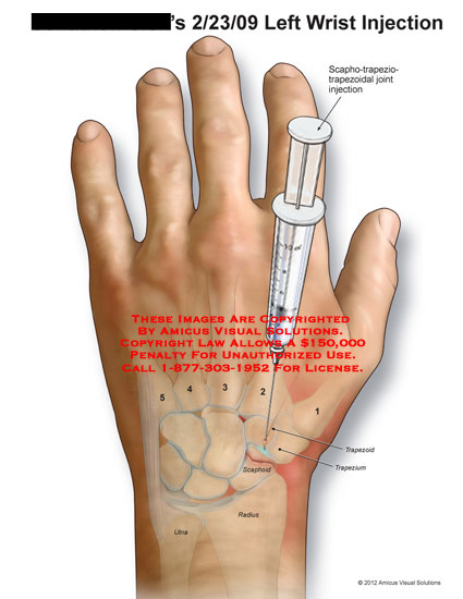 amicus,medical,wrist,injection,scaphotrapeziotrapezoidal,joint,trapezoid,trapezium,scaphoid,radius,ulna