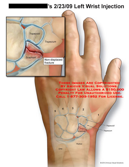amicus,medical,wrist,injection,trapezoid,trapezium,scaphoid,non-displaced,fracture,radius,ulna