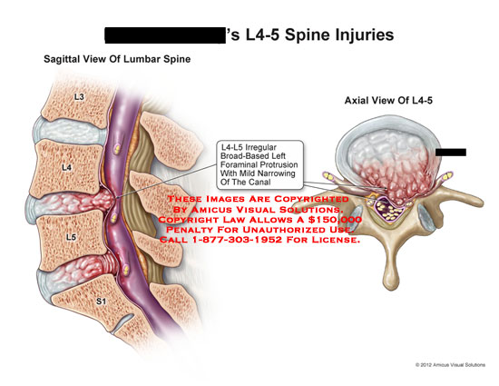 amicus,injury,lumbar,spine,injuries,broad-based,foraminal,protrusion,narrowing,canal,L4-5,