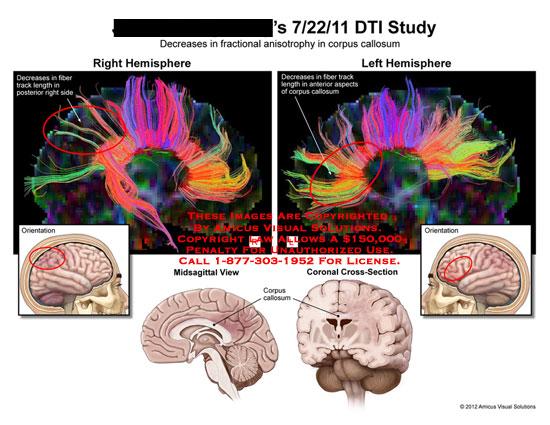amicus,medical,DTI,study,brain,hemisphere,fractional,anisotrophy,corpus,callosum,fiber,track,length,