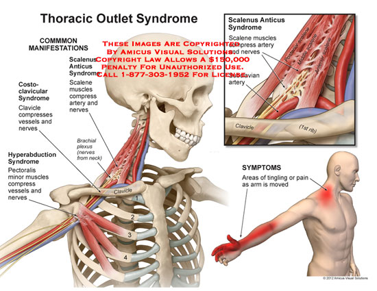 Amicus illustration of amicusinjurythoracicoutletsyndrome no description yet ccuart Image collections