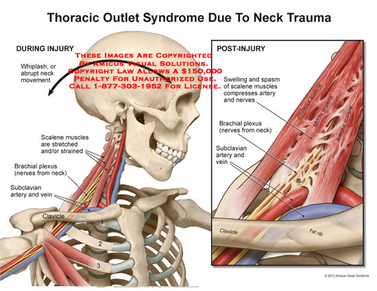 amicus,injury,neck,trauma,thoracic,outlet,syndrome,whiplash,abrupt,movement,scalene,muscles,stretched,strained,brachial,plexus,nerves,subclavian,artery,vein,clavicle,ribs,swelling,spasm,compresses,