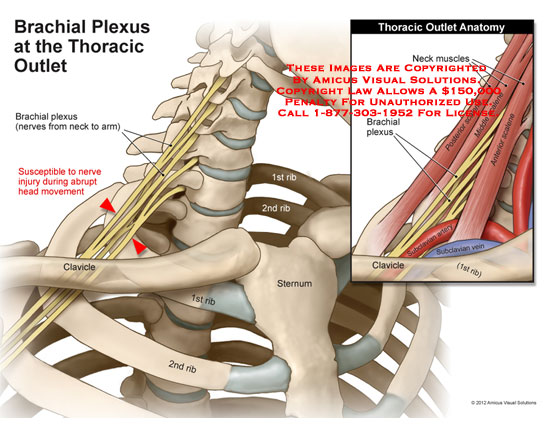 amicus,anatomy,neck,nerves,brachial,plexus,thoracic,outlet,arm,injury,abrupt,head,movement,clavicle,ribs,sternum,muscles,scalene