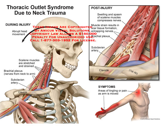 amicus,injury,neck,thoracic,outlet,syndrome,trauma,abrupt,head,movement,scalene,muscles,stretched,strained,brachial,plexus,arm,subclavian,artery,clavicle,ribs,swelling,spasm,compresses,nerves,scar,tissue,formation,entrapping,symptoms,tingling,pain