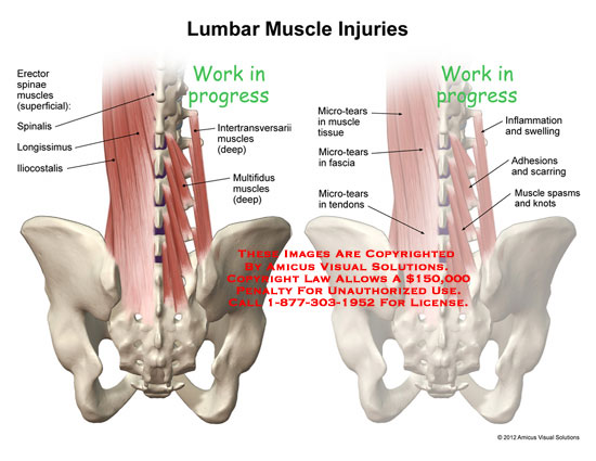 amicus,injury,lumbar,muscles,injuries,erector,spinae,spinalis,longissimus,iliocostalis,intertransversarii,multifidus,micro-tears,tissue,tendons,inflammation,swelling,adhesions,scarring,spasms,knots
