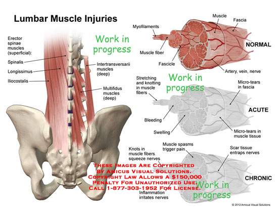 amicus,injury,lumbar,muscles,injuries,erector,spinae,spinalis,longissimus,iliocostalis,intertransversarii,multifidus,myofilaments,fascia,fiber,fascicle,stretching,knotting,bleeding,swelling,micro-tears,tissue,nerves,spasms,pain,inflammation,scar