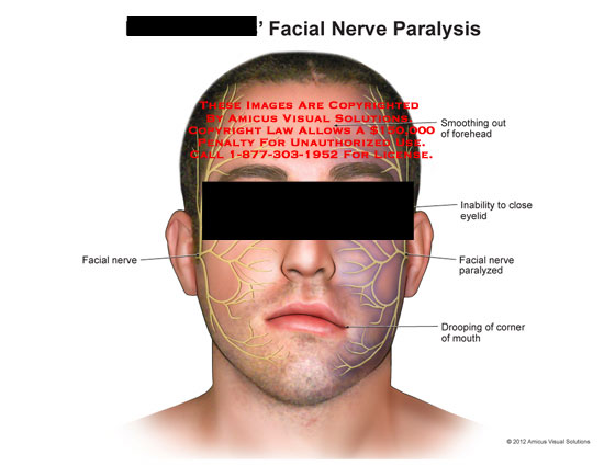 Bells palsy - Wikipedia