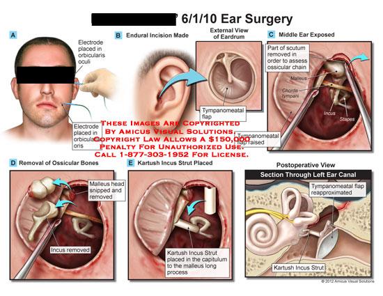 amicus,surgery,ear,electrode,orbicularis,occuli,oris,eardrum,tympanomeatal,flap,scutum,ossicular,chain,malleus,chordatympani,incus,stapes,bones,middle,head,kartush,strut,capitulum,