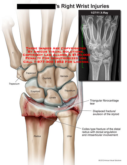 amicus,injury,wrist,trapezium,trapezoid,capitate,hamate,scaphoid,lunate,triquetrum,radius,ulna,triangular,fibrocartilage,tear,displaced,fracture,avulsion,styloid,colles,angulation,intraarticular