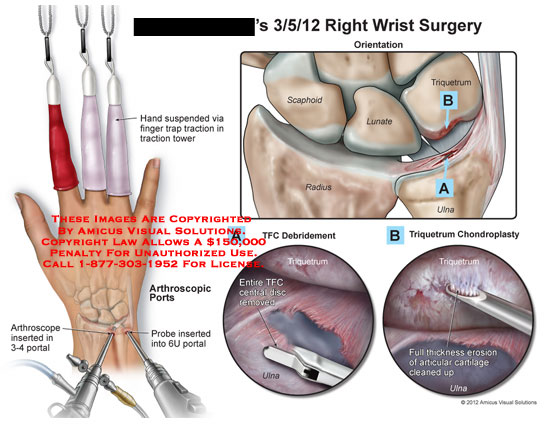 amicus,surgery,wrist,hand,suspended,finger,trap,traction,tower,arthroscope,portal,arthroscopic,probe,scaphoid,lunate,triquetrum,radius,ulna,TFC,triangular,fibrocartilage,debridement,central,disc,chondroplasty,erosion,