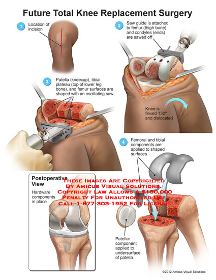 amicus,surgery,knee,replacement,total,future,saw,femur,condyles,patella,tibial,plateau,oscillating,femoral,components,postoperative,hardware