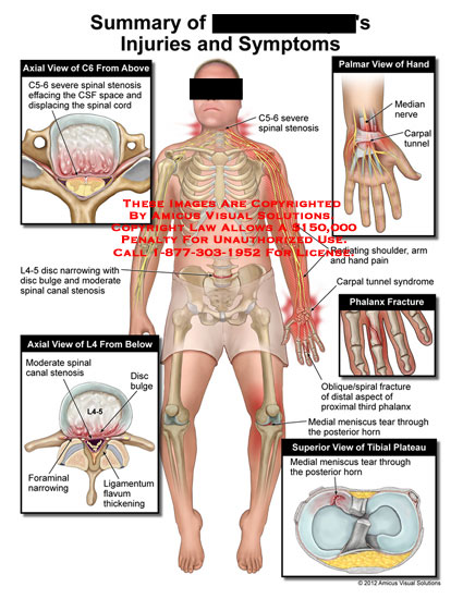 amicus,injury,summary,injuries,symptoms,spinal,stenosis,CSF,cerebrospinal,fluid,space,spinal,cord,disc,narrowing,bulge,canal,foraminal,ligamentum,flavum,thickening,hand,median,nerve,carpal,tunnel,shoulder,arm,pain,syndrome,phlanx,oblique,spiral,fracture,phalanx,meniscus,tear,horn,tibial,plateau
