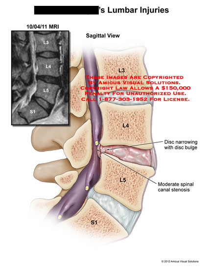 amicus,injury,lumbar,spine,vertebrae,disc,narrowing,bulge,spinal,canal,stenosis,MRI