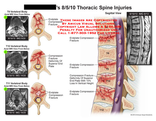 amicus,injury,thoracic,spine,injuries,vertebral,body,endplate,compression,fracture,deformity,height,MRI