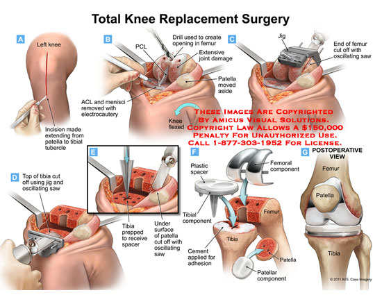 amicus,surgery,knee,replacement,patella,tibial,tubercle,ACL,cruiciate,ligament,PCL,menisci,electrocautery,drill,joint,damage,oscillating,saw,jig,spacer,plastic,component,cement,