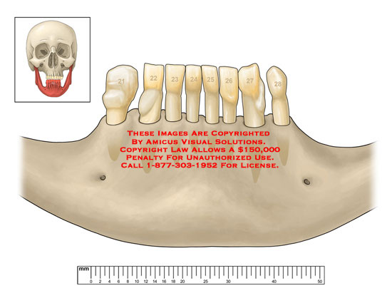 amicus,medical,mandible,jaw,teeth,no,keywords