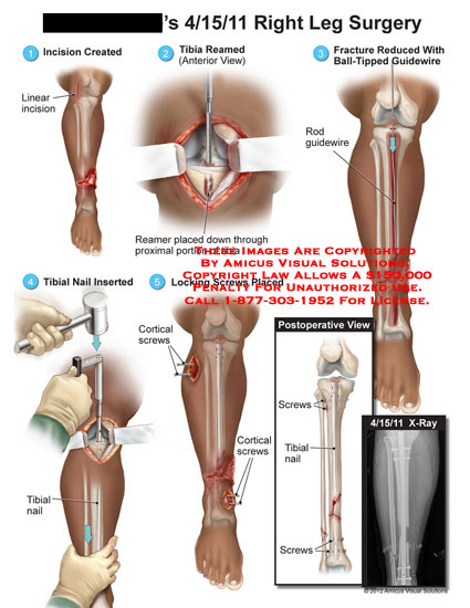 amicus,surgery,leg,tibial,reamer,fracture,reduced,ball-tipped,guidewire,rod,nail,cortical,screws,locking,postoperative,x-ray