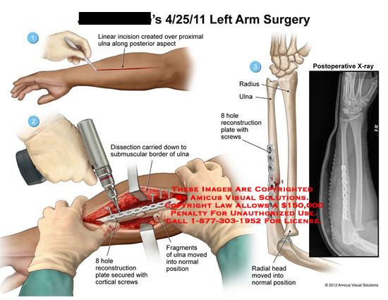 Left elbow x ray