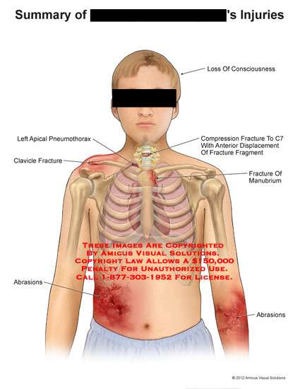 amicus,injury,summary,injuries,apical,pneumothorax,clavicle,fracture,abrasions,loss,consciousness,compression,displacement,fragment,manubrium,